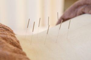 生駒で胸郭出口症候群に鍼灸施術を行うなら、えだ鍼灸整骨院・整体院