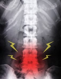 腰椎分離症で腰が痛い