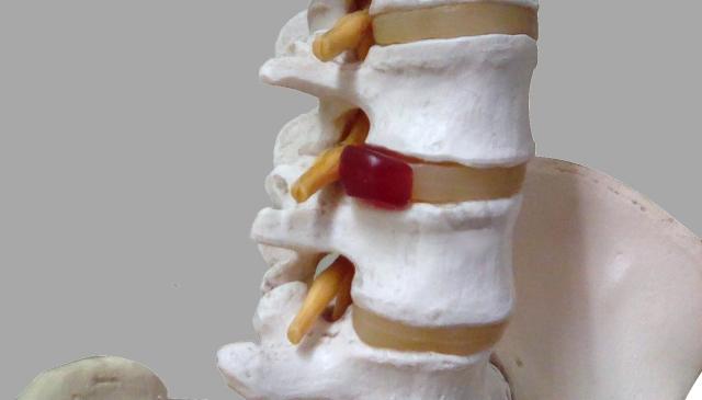 生駒で腰椎椎間板ヘルニアなら、えだ整骨院