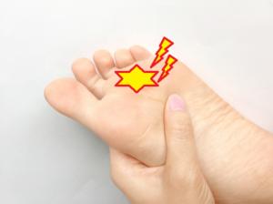 モートン病の症状は足の中指と薬指の間が痛くなる