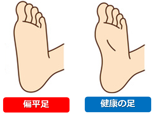 扁平足が原因で内反小趾になる