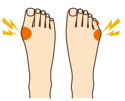 小指の外反母趾